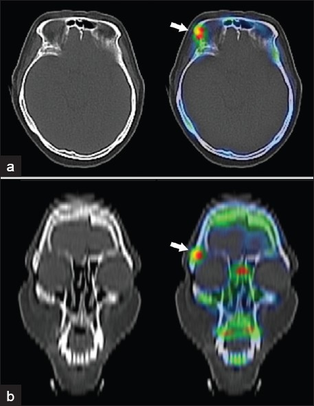 Figure 2: Technetium-99m methylene diphosphonate bone imaging, single photon emission computed tomography/computed tomography (SPECT/CT) of the skull. (a) Axial CT and fused SPECT/CT and (b) coronal reconstructed CT and fused SPECT/CT images demonstrate focal uptake in the right fronto-zygomatic suture. No corresponding bony masses, sclerosis or bone destruction is seen