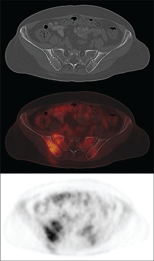 Figure 1: FDG PET-CT transaxial images showing moderate hypermetabolic activity in the posterior pelvis bone and soft tissue with linear needle tracts on CT