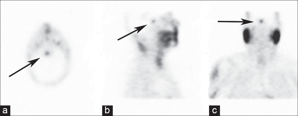 Figure 2: Tc-99m MIBI SPECT in patient with suspected parathyroid adenoma (a) Transverse, (b) Sagittal and (c) Coronal section images). A focus of increased tracer activity is noted in the area of the sella Turcica with a high P/B ratio of 19.5; Confirmed as Pituitary macro-adenoma on MRI