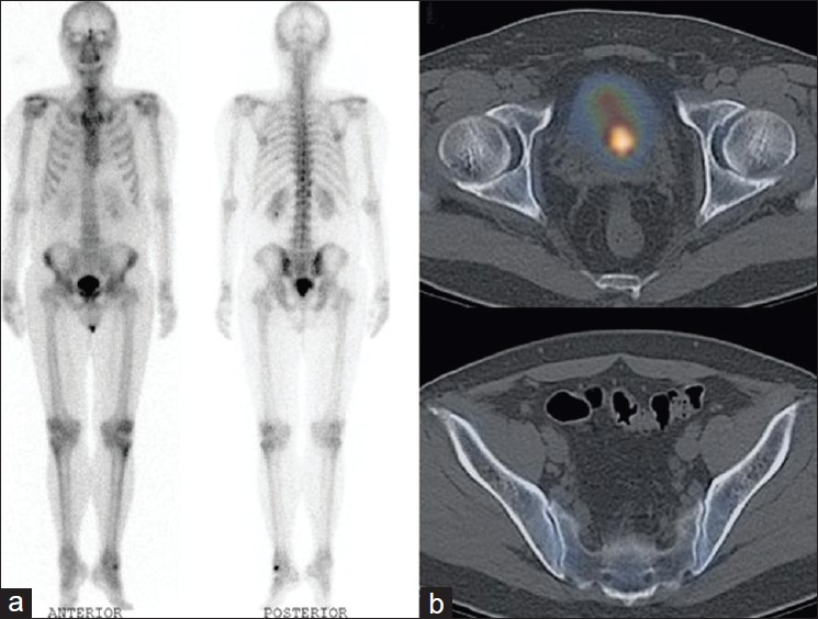 how to get bone cancer