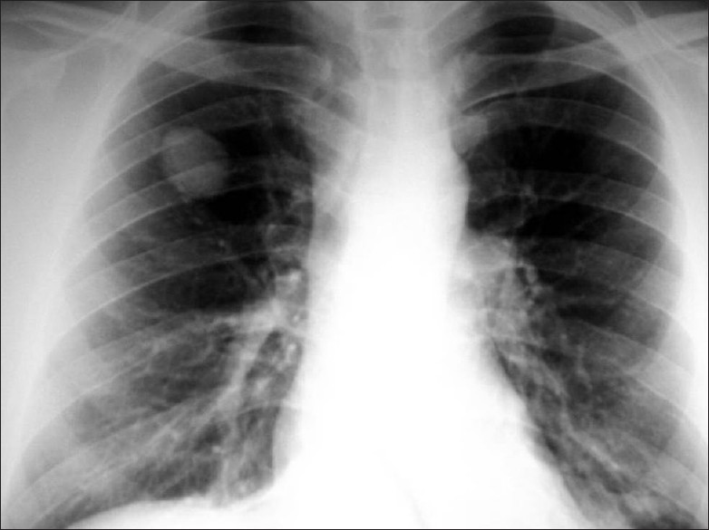 Figure 1: Chest X-ray of a patient with solitary pulmonary nodule