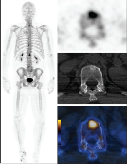 Figure 1: NaF-18-PET/CT images showing increased sclerotic activity within the anterior L1 vetebral body