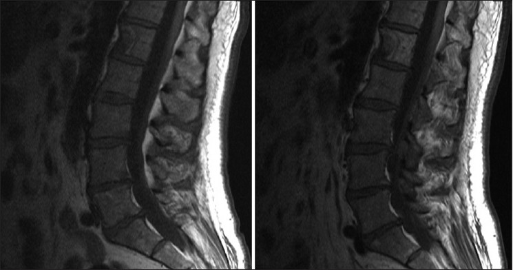 Figure 2: T2-weighted sagittal MRI images of L1 vertebra before XRT (left) and after XRT (right)