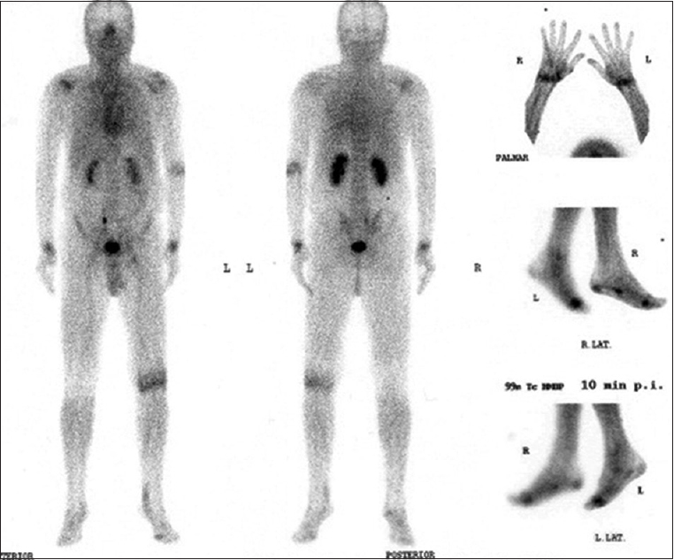 Figure 5: Typical blood pool phase of a patient suffer from rheumatoid arthritis. Sign of arthritis in left knee, both shoulders, left elbow, both wrist and metatarsophalangeal I, in these joints a radiosynovectomy is indicated. Additional tendovaginitis in the 5th finger of the right hand is appearing