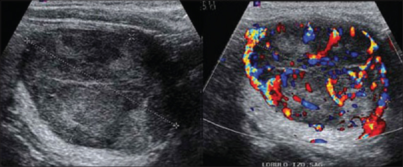 Can Ultrasound Predict Malignancy In Patient With Thyroid Cold