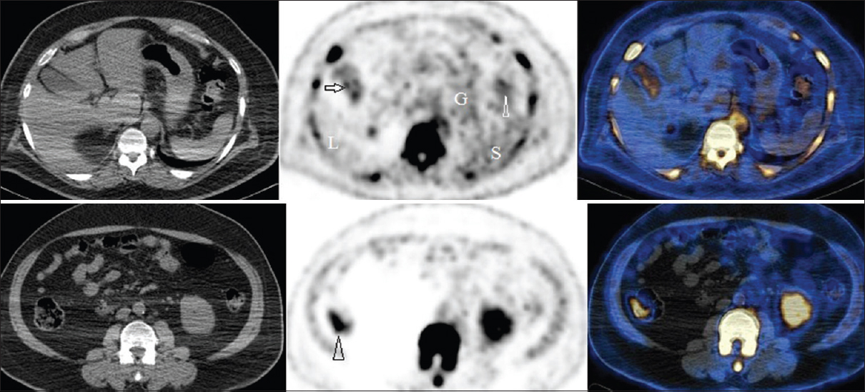 World Journal of Nuclear Medicine: Browse articles