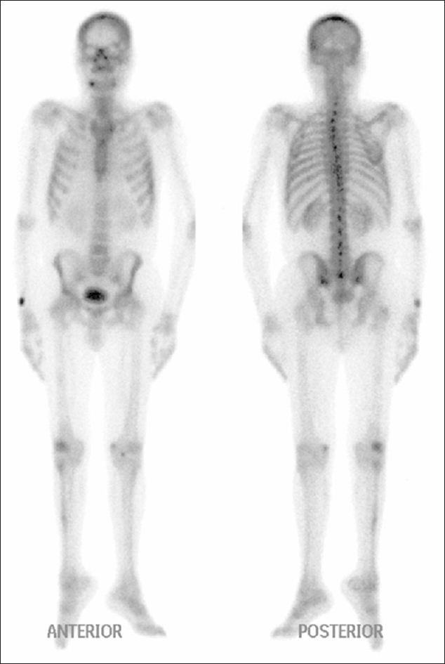 Figure 1: Anterior (left) and posterior (right) projections of whole-body bone scintigraphy. The scan demonstrates a congenital anomaly of the scapula, as called Sprengel's deformity. Otherwise, the study was negative for bone metastasis