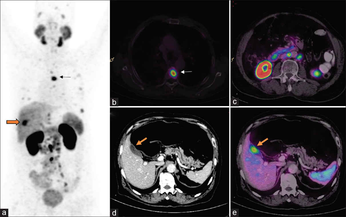 Figure 2: Nodal recurrence: Postexternal beam radiotherapy, the patient presented with serum prostate-specific antigen of 4 ng/ml. Whole body maximum intensity projection (a) image shows multiple focal tracer uptake in mediastinum, abdomen, and pelvis. Axial fusion images (c and e) show intense uptake in subcentimeter-sized retroperitoneal (block arrow) and mediastinal nodes (arrow), respectively. The size of all these nodes was not abnormal in CT (b and d). Patients were subsequently started on androgen deprivation therapy but progressed to castrate resistant disease