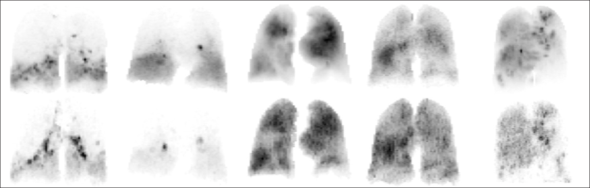 Figure 3: Normalized voxel values positron emission tomography (top row) and single-photon emission computed tomography (bottom row) maximum intensity projection scans. Each column corresponds to scans for the same patient