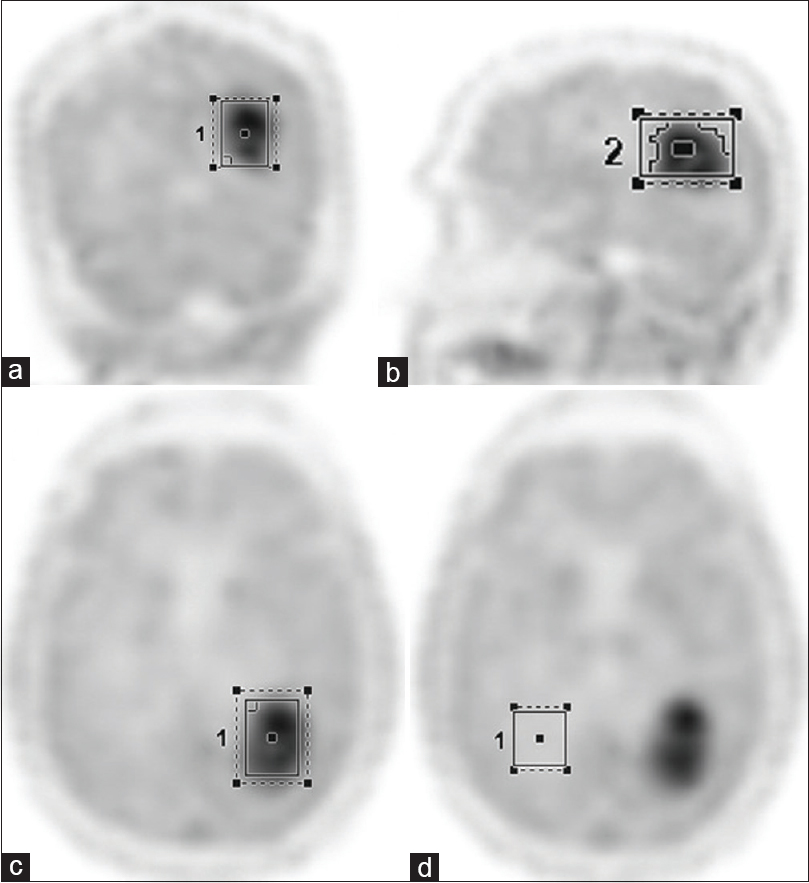 Figure 1: Region of interest generated over coronal (a), sagittal (b), and axial (c) FET-PET images. Background region of interest drawn over contralateral white mater (d) on axial PET image
