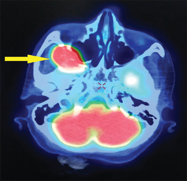 Figure 4: 18-Fluorodeoxyglucose positron-emission computed tomography scan (fused image) showing metabolically active skeletal lesion involving sphenoid bone (yellow arrow)