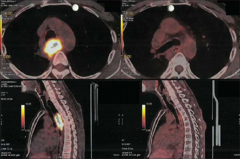 Figure 1: Pre- and postchemoradiotherapy positron-emission tomography–computed tomography scans showing complete metabolic response in a patient of carcinoma of the upper thoracic esophagus