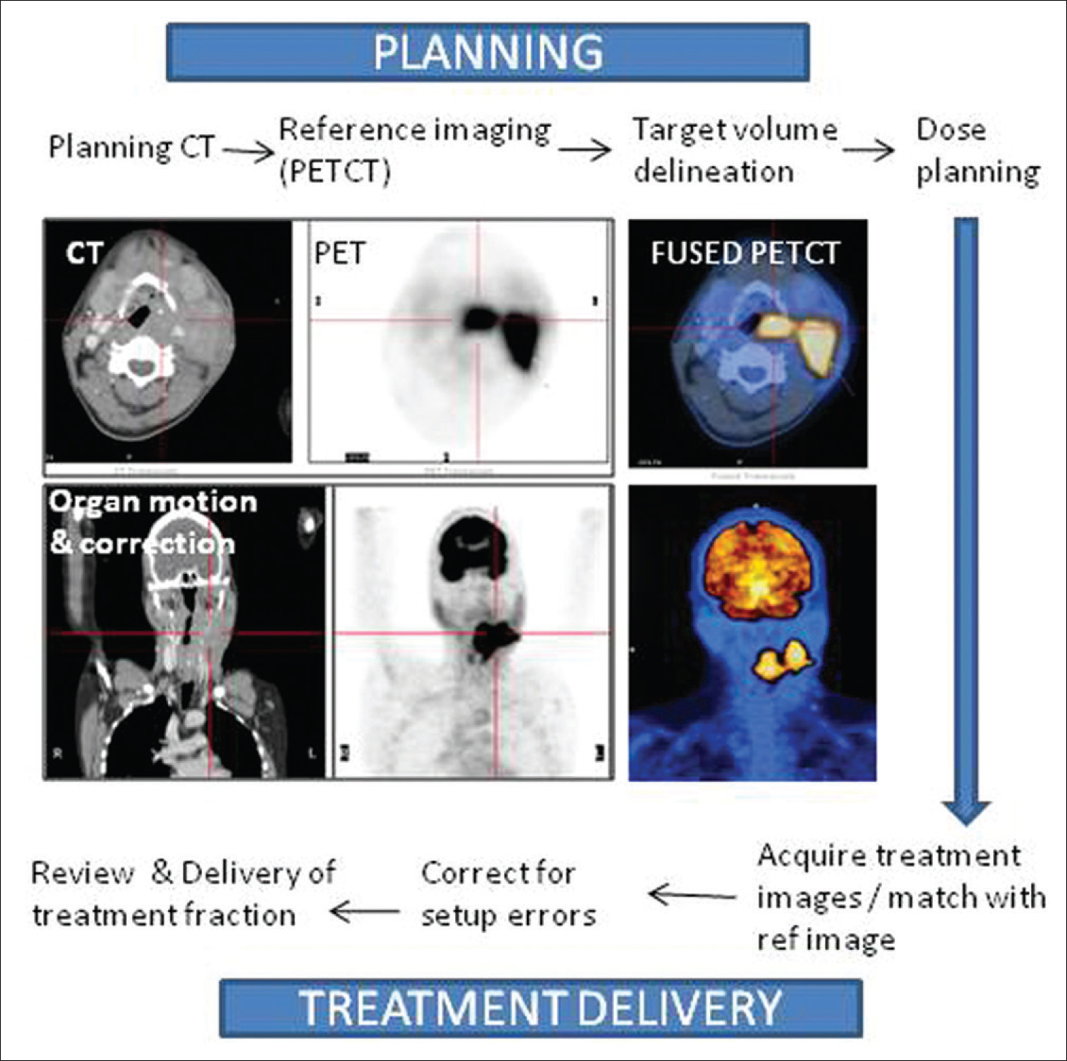 Figure 3: Image registration and steps for incorporating PET-CT images into RT planning system