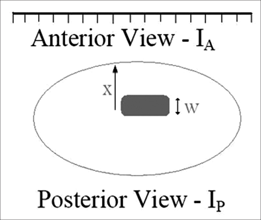 Figure 2: Imaging; thickness of the organ in the anterior and posterior views
